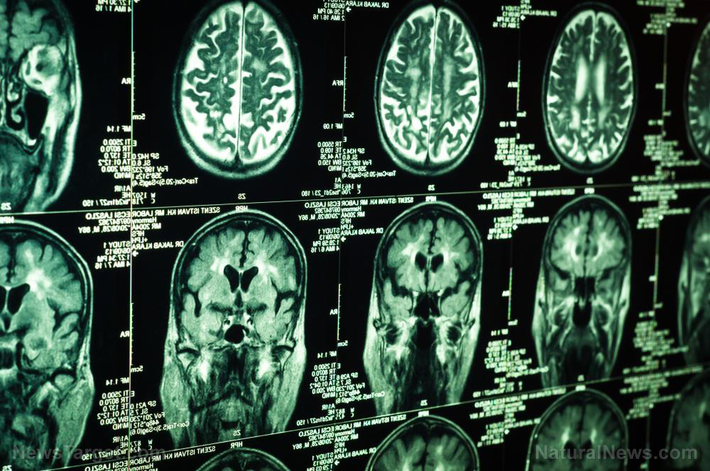 Researchers use electrical stimulation to improve depression symptoms